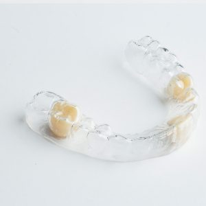 Clear Retainer Partial Dentures