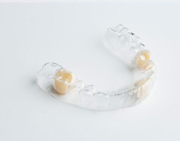 Clear Retainer Partial Dentures