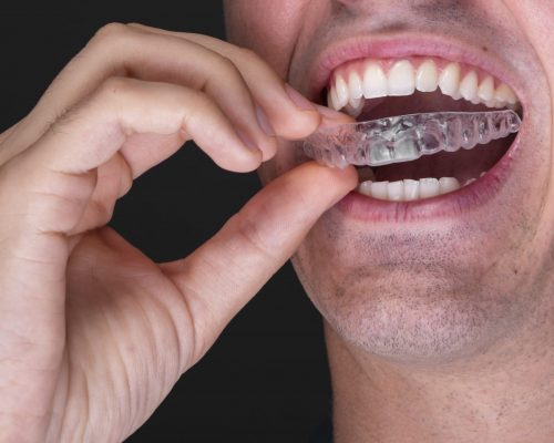 What Safety Does A Professional Sports Mouthguard Provide?