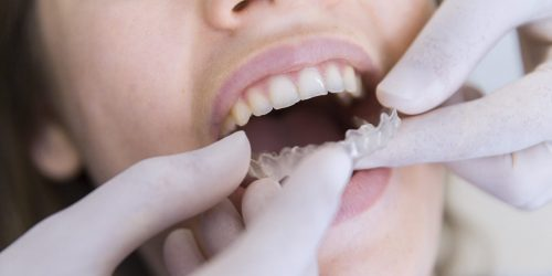 Nightguards for Bruxism: Teeth Grinding and Clenching