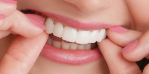 Who can benefit from Clip-On-Smile